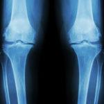 成長痛と背の伸びの関係は?